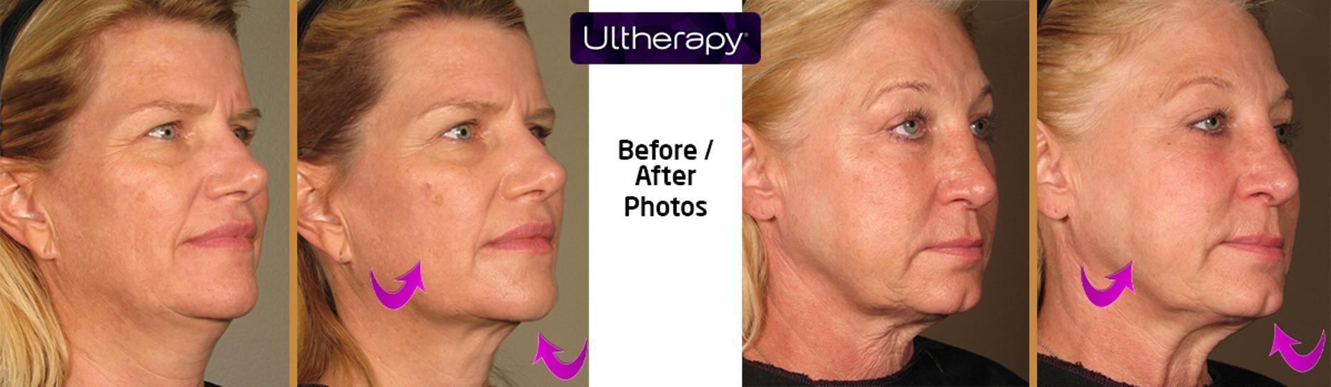 Ultherapy Treatment @ Oxygen Medical Budapest